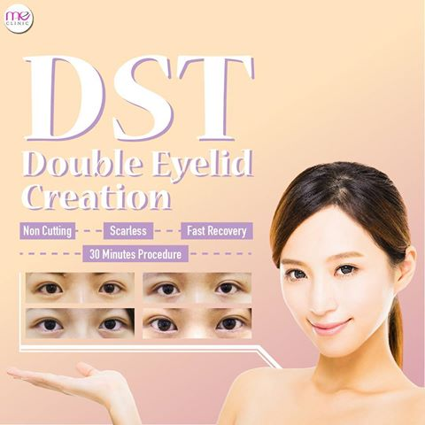 Double Suture & Twist | ME Aesthetic Clinic Malaysia
